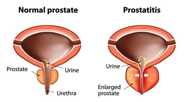 Sérült hasa prostatitis)